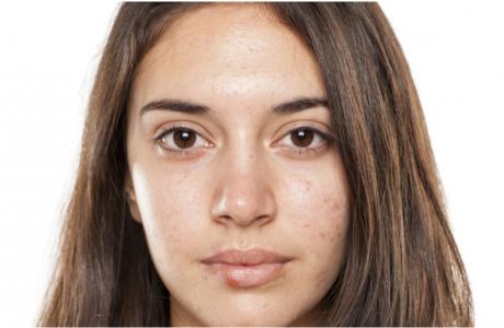 כתבה באתר מאקו – הצד המבאס של האביב: 3 בעיות העור הנפוצות בעונה